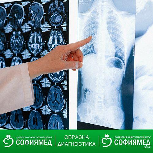 Полезна информация за изследвания в Образна диагностика