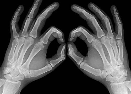 Отбелязваме международния ден на радиологията