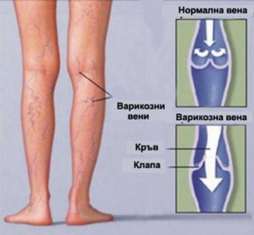 """Безплатни прегледи за съдови заболявания в """"Софиямед"""""""