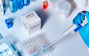 Тестове за COVID-19 с PCR метод